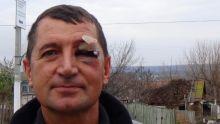 На Украине избит общественный деятель,  который занимался организацией акции протеста против  строительства курятников